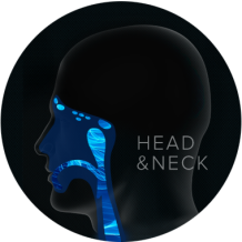 head and neck cancer graphic