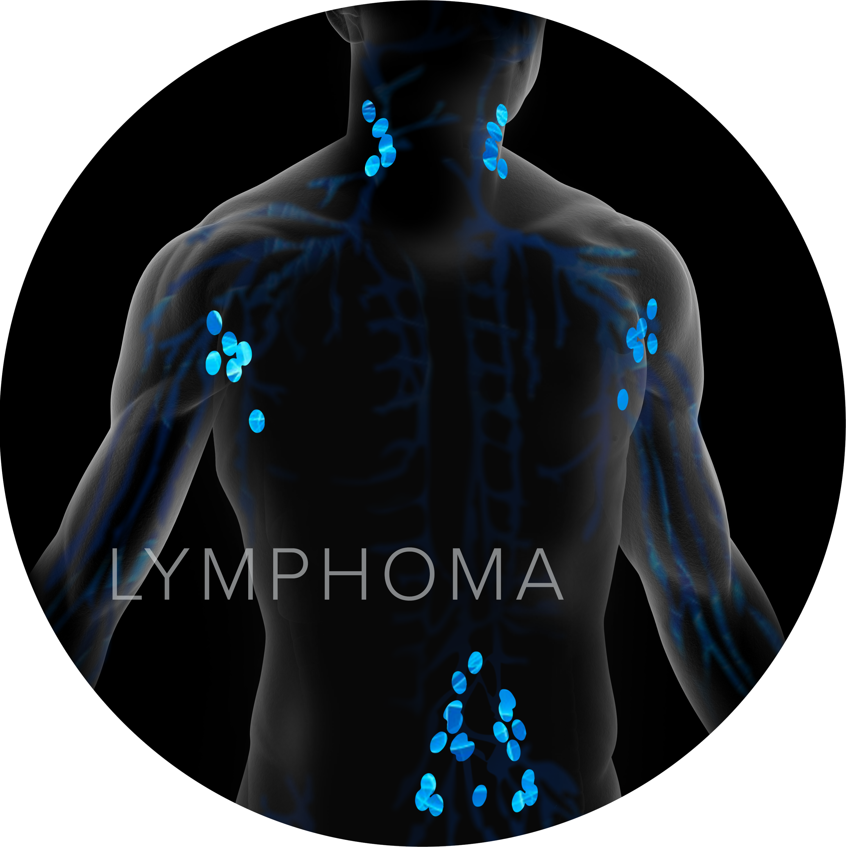 lymphoma graphic
