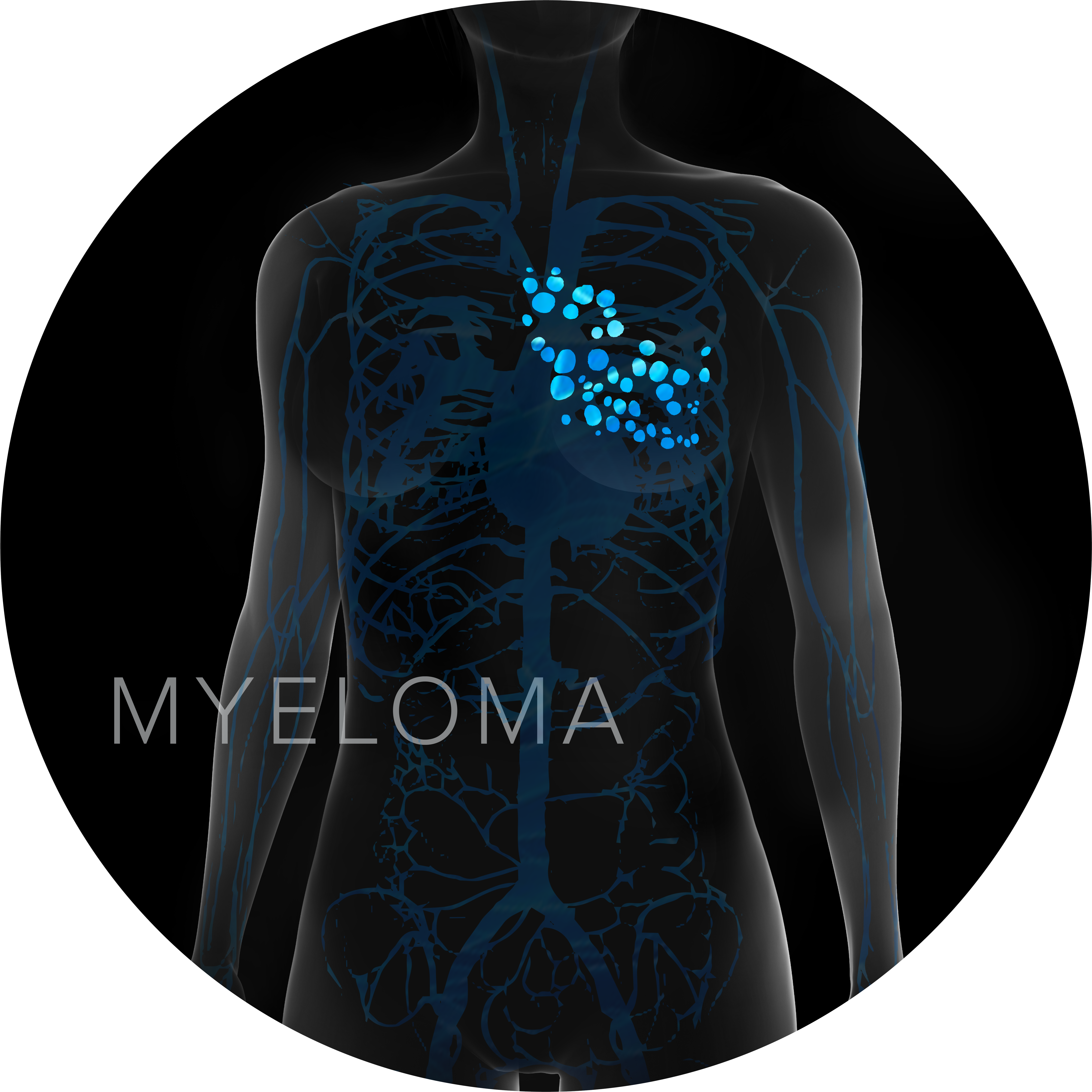 multiple myeloma graphic