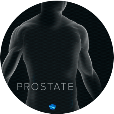 prostate cancer graphic